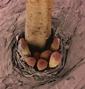 Folículo donde se ve la parte trasera de varios D. folliculorum